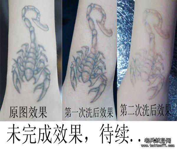 武汉最专业洗纹身店介绍手部蝎子黑色激光洗纹身效果