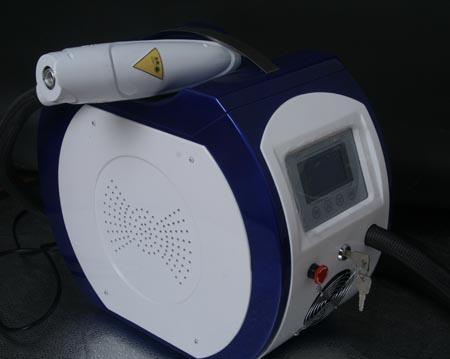 武汉激光洗纹身机