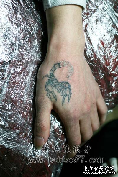 手部虎口黑色蝎子激光洗纹身过程图片