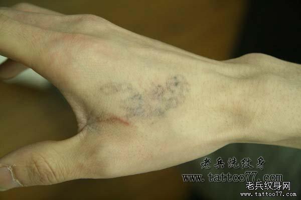 武汉老兵洗纹身会所介绍手部虎口黑色纹身图案激光清纹身过程