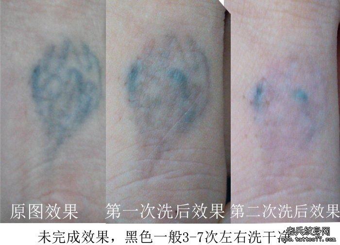 最好的激光洗纹身店带来手指黑色纹身图案激光洗纹身步骤