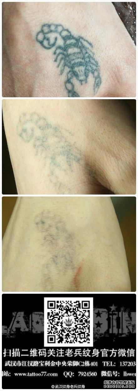 洗纹身对于彩色的纹身 不可能一次洗掉的,要两三次会有不错的效果;在