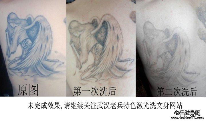 cn/         手部虎口黑色蝎子激光洗纹身效果武汉专业洗纹身 0 (0) 0图片