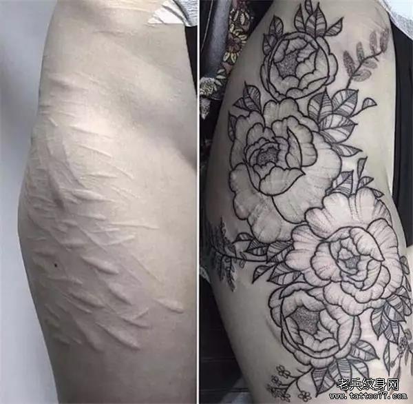 免费设计    注;消费满1999元即可使用 活动仅限疤痕,妊辰纹遮盖 不包